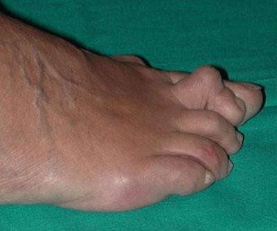 Intorpidimento delle dita dei piedi, formicolio, parestesia delle gambe o dei piedi
