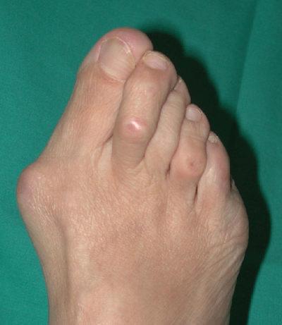 Dolore alle dita dei piedi: cause e rimedi